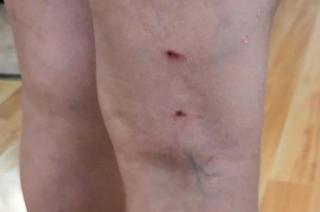 Бродячие собаки напали на ребенка рядом с администрацией Уссурийска